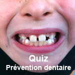 quiz-prevention-dentaire-1